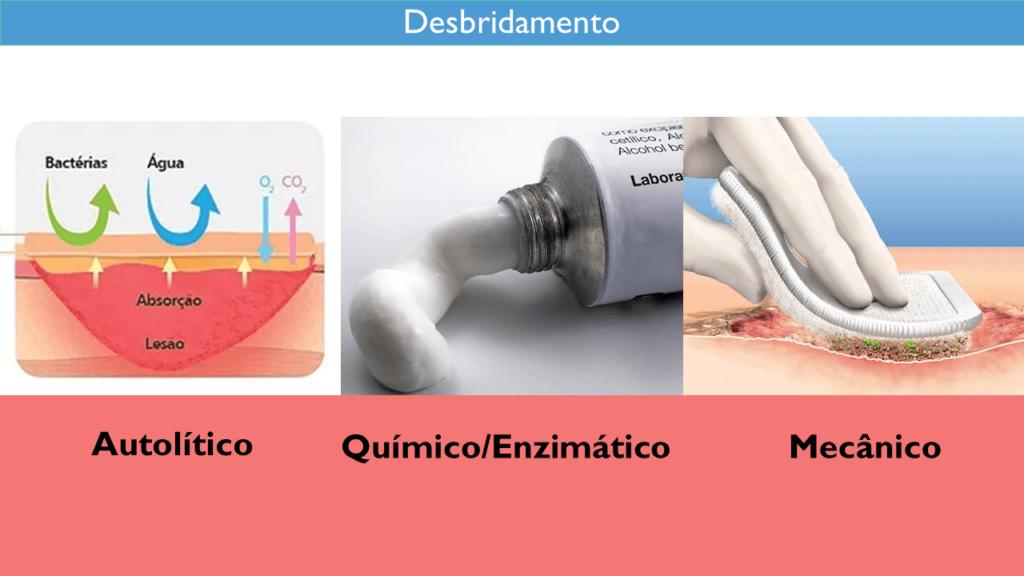 desbridamento-autolitico-quimico-mecanico