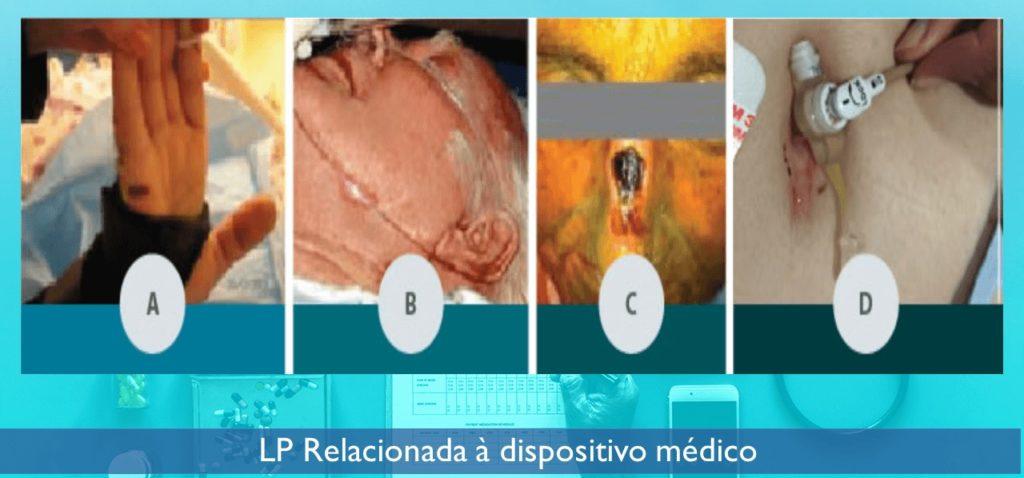 lesao-por-pressao-dispositivo-medico