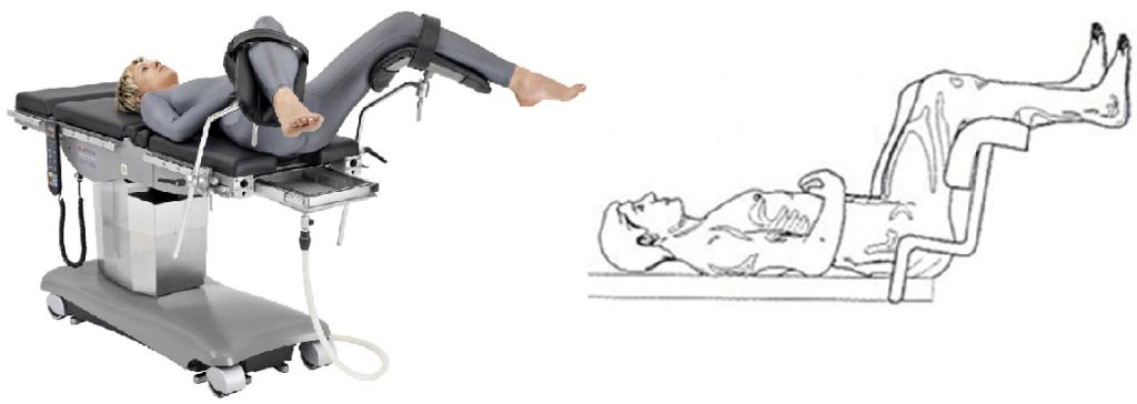 posição-litotômica